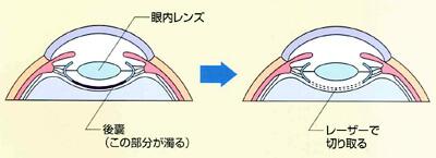 レーザー白内障手術