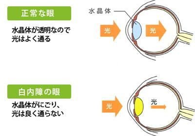 多焦点眼内レンズ(先進医療)